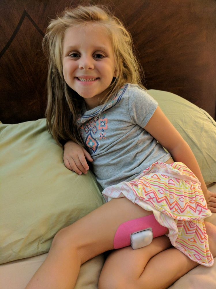 Pink Stayput adhesive patch in use on a child wearing a diabetes insulin pump.